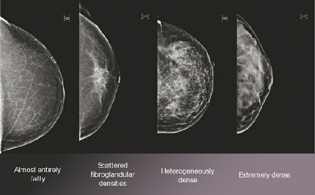 Breast Density examples